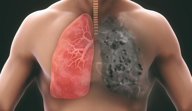 Akciğer sağlığını koruyan besinler nelerdir? Akciğere ne iyi gelir?