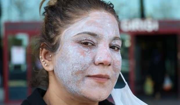 Gittiği güzellik merkezi genç kadının kabusu oldu! Yüzü tanınmaz hale geldi