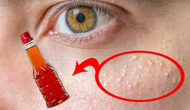 Yağ bezelerini ne eritir? Göz altı çevresi yağ bezeleri için sirke tedavisi uygulaması