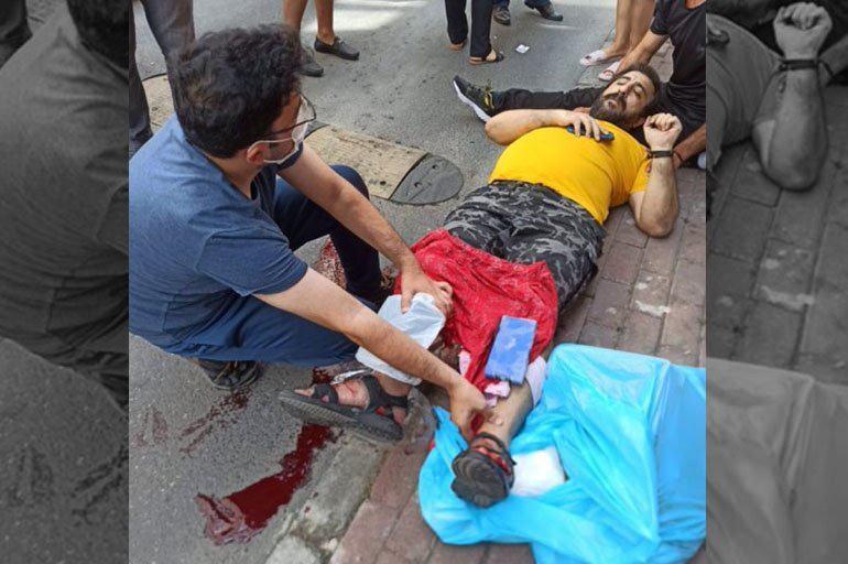 Gazeteci Emre Erciş, kızının yanında silahlı saldırıya uğramıştı.