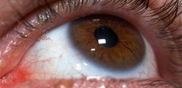 Alerjik göze soğuk kompres uygulayın