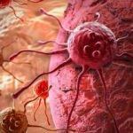 Aort damar yırtığı nedir?