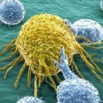 Altı yaşındaki çocuğa prostat kanseri teşhisi!