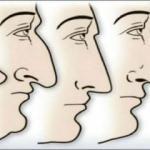 Burnunuz karakterinizi ele veriyor mu?