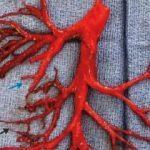 Hasta, ağaç dalı şeklinde kan pıhtısı tükürdü