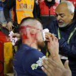 Antalyaspor-Fenerbahçe maçında talihsiz an