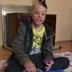 13 yaşındaki Kadir hayatını geri istiyor