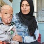 Korkunç olay sonrası küçük Halil'in ailesi yardım bekliyor!
