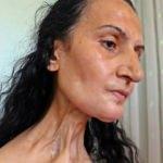 Dil kanserine yakalandı, hayatları karardı