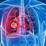Akciğer kanserinin belirtileri: Akciğer kanserinin evreleri!