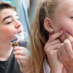 Ergenlik dönemi ve özellikleri nedir? Kızlarda ve erkeklerde ergenlik belirtileri neler?