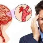 Beyin kanaması belirtileri: Gizli beyin kanaması nasıl anlaşılır?
