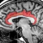 Beynin konum bilgisi lazerle şaşırtıldı