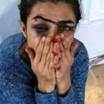 İşkenceci kocasını öldürmüştü! İşte Melek İpek'in ilk sözleri!