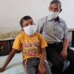 10 ameliyat geçiren ve bir gözünü kaybeden Veysel sağlığına kavuşmayı bekliyor