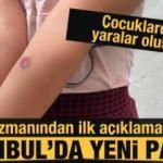 İstanbul'da sivrisinek paniği! Çocuklarda yaralar oluştu