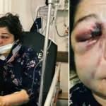 CHP'li başkanın adamları oğlu ve geliniyle ile birlikte öldüresiye dövdü!