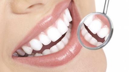 Diş sağlığına iyi gelen besinler