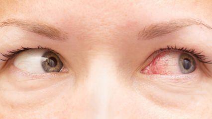 Göz kanlanması nasıl geçer? Evde uygulanabilecek tedavi yöntemleri...