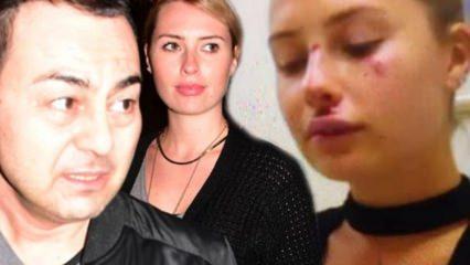 Chloe Loughnan'dan kaza sonrası ilk açıklama