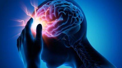 Beyin anevrizma nedir ve belirtileri nelerdir? Beyin anevrizmanın tedavisi var mıdır?