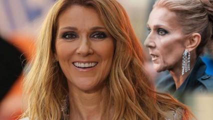 Celine Dion son haliyle sevenlerini üzdü! Bir deri bir kemik kaldı!