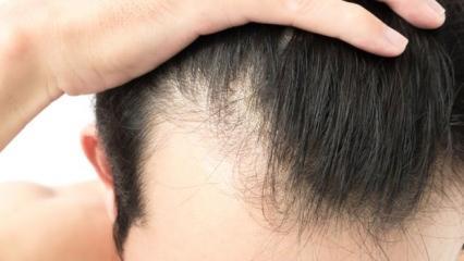 Aşırı saç dökülmesini yok eden karışım!