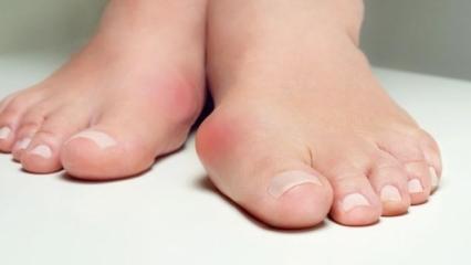 Ayak üstünde kemik çıkıntısı nedenleri | Ayak kemiği çıkıntısı tedavisi
