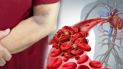 Kan pıhtılaşması nedir? Kan pıhtılaşması belirtileri nelerdir ve tedavisi var mıdır?