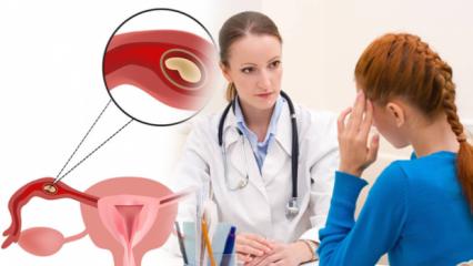Dış gebelik (Ektobik gebelik) nedir, neden olur? Dış gebelik belirtileri neler?