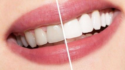 Beyaz dişler için öneriler nelerdir? Evde doğal yolla yapılan diş beyazlatma kürü...