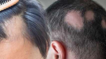 Saçkıran (Alopesi areata) nedir? Saçkıran belirtileri neler? Saçkıran için etkili çözümler