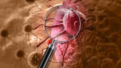 Kanser nedir ve belirtileri nelerdir? Kaç çeşit kanser vardır? Kanser nasıl önlenir?