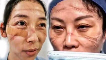 Hemşirelerin ürküten görüntüsü! Koronavirüste ölü sayısı 564'e çıktı