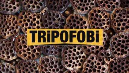 Tripofobi nedir neden olur? Delik fobisi belirtileri ve tedavisi