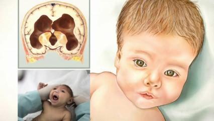 Bebeklerde hidrosefali ve mikrosefali nedir? Anne karnında bebeğin beyninde su toplaması