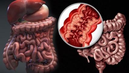 Crohn hastalığı nedir? Crohn hastalığının belirtileri & Tedavisi
