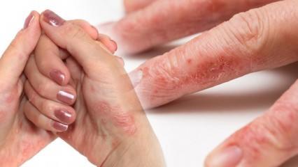 Egzama hastalığı nedir ve nasıl geçer? Egzamayı geçiren en kolay yöntemler