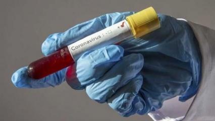Korkulan oldu! Koronavirüste kritik eşik geçildi