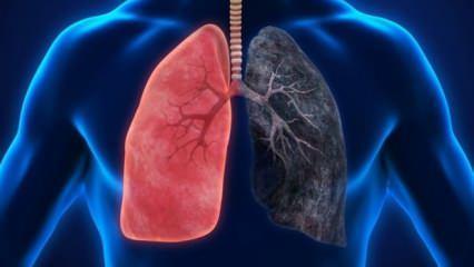 Akciğere ne iyi gelir? Akciğeri temizleyen ve koruyan besinler nelerdir?