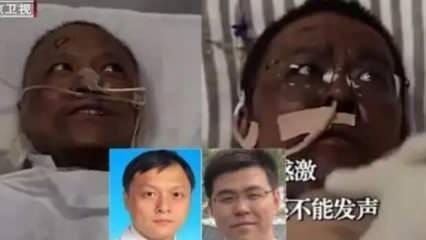 Koronavirüse yakalanan iki doktorun ten rengi değişti