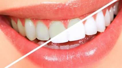 Dişlerin dip kısmı neden kararır? Bu karışımla bir haftada dişlerinizi beyazlatın!