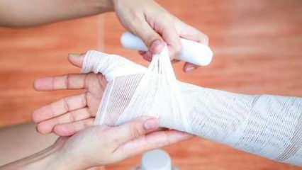 Yanığa ve yanık acısına ne iyi gelir? Evde uygulayabileceğiniz doğal yanık tedavisi
