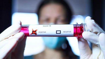 İngiltere'den büyük keşif: Fiyatı çok ucuz, koronavirüsün ilacını bulduk