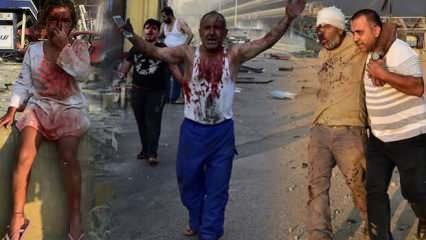 Son dakika haberi: Beyrut'ta şiddetli patlama: 78 kişi öldü, 4 binden fazla yaralı var