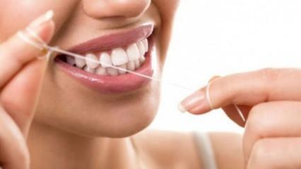 Diş taşı nedir nasıl temizlenir? Diş taşı oluşumu nasıl engellenir?
