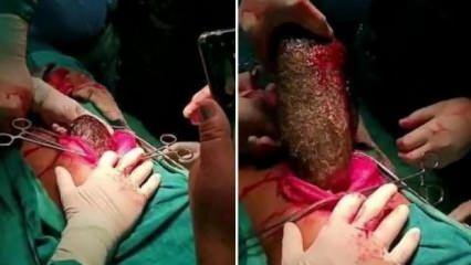 17 yaşındaki kızın karnından 7 kilo saç topu çıkartıldı