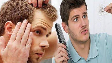 Aşırı saç dökülmesine ne iyi gelir   Erkeklerde tepeden durmayan saç dökülmesinin nedenleri