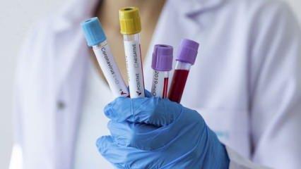 Koronavirüs tablosu değişiyor... Yeni tabloda hangi veriler olacak?