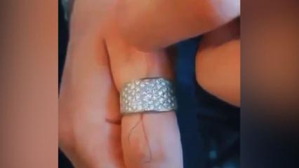 Sıkışan yüzüğü parmaktan çıkarmanın pratik yolları